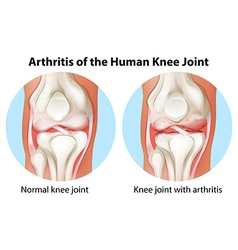 Arthritis of the human knee joint vector