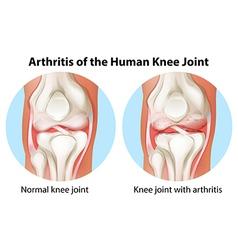 Arthritis of the human knee joint vector