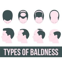 Stages of hair loss and treatment vector image