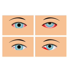 conjunctivitis and red bloodshot eyes vector image