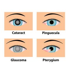 Cataract pinguecula glaucoma and pterygium eye vector