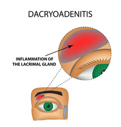 dacryoadenitis inflammation of the lacrimal gland vector image vector image