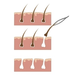Example of hair removal from skin with tweezers vector