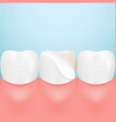 dental veneers on a human tooth isolated on a vector image