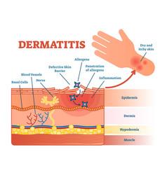 dermatitis flat diagram vector image