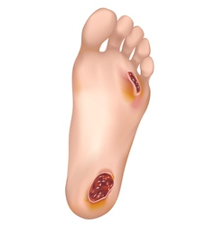 Diabetic foot vector