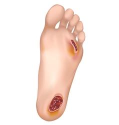 Diabetic foot vector image