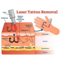 Laser tattoo removal diagram vector