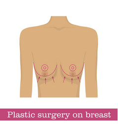 Plastic surgery breast uplift infographic vector