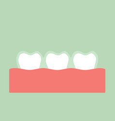 teeth wear silicone trainer or invisible braces vector image vector image