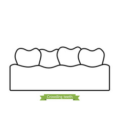 Crowding teeth or malocclusion - cartoon outline vector