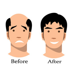 Male baldness pattern stages set vector