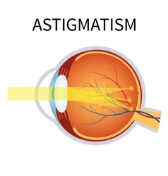 Astigmatism eyesight problem blurred vision vector