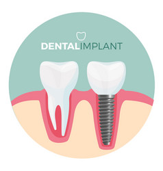 dental implant placard with title on vector image vector image