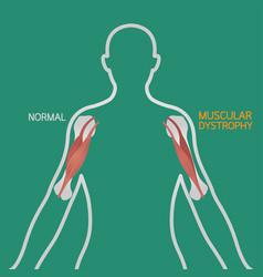 Muscular dystrophy vector