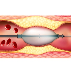Stent vector