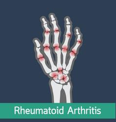 rheumatoid arthritis icon vector image
