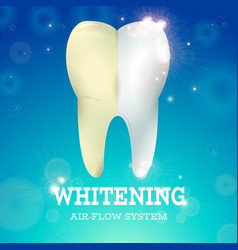 tooth whitening 1 vector image vector image