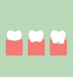 Step of gum disease vector