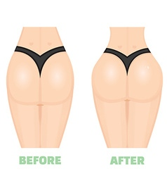 Buttocks breech butt rear nates augmentation vector image