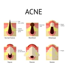 Types of acne pimples Healthy skin Whiteheads vector image