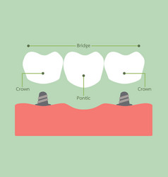 Dental bridge vector