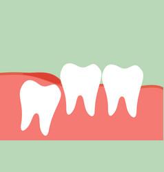 Wisdom tooth vector