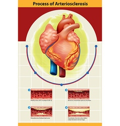 Poster of arteriosclerosis process vector