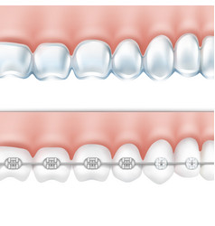 human teeth with braces set vector image