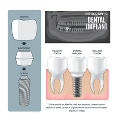 infographic dental implant structure info poster vector image