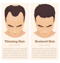 Male pattern baldness design template vector