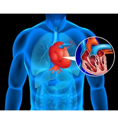 Human heart with cancer vector image