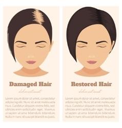 Hair loss in women vector