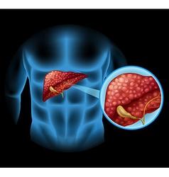 Sclerosis diagram in human body vector image