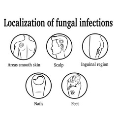Localization of fungal infections vector