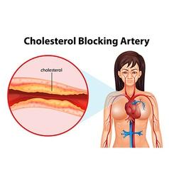 Ateriosclerosis vector