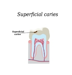 Home tooth caries on isolated vector