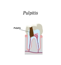 Dental pulp on isolated vector
