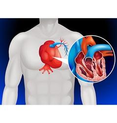 Heart disease diagram in detail vector image