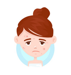 unhappy teen girl struggling acne vector image vector image