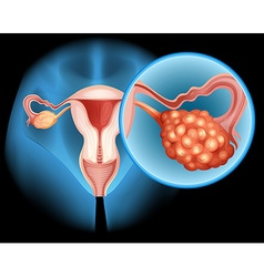 Ovarian cancer diagram in detail vector