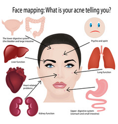 Face mapping what acne telling you info-graphic vector