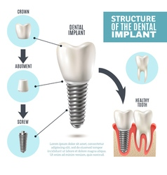 Dental implant structure medical infographic vector