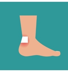 Callus on the foot vector image vector image
