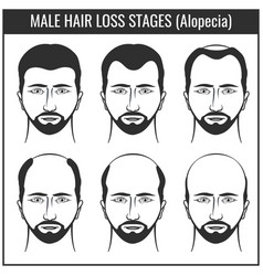 Hair loss stages and types of baldness man hairs vector