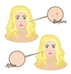 Girl face with acne vector