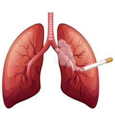 Lung cancer with smoke vector