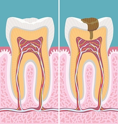 Carious human tooth cross section vector
