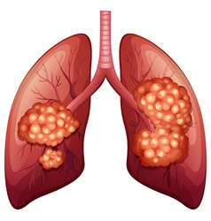 Lung cancer process in detail vector
