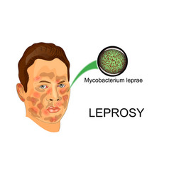 Face of the patient suffering from leprosy vector